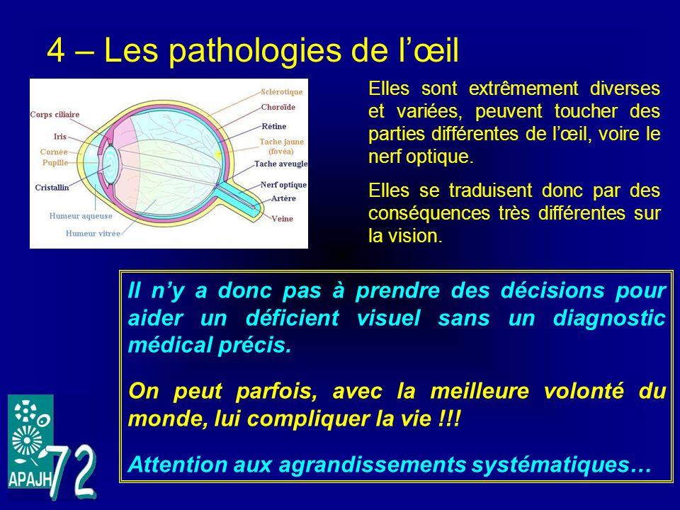 4 – Les pathologies de l'œil