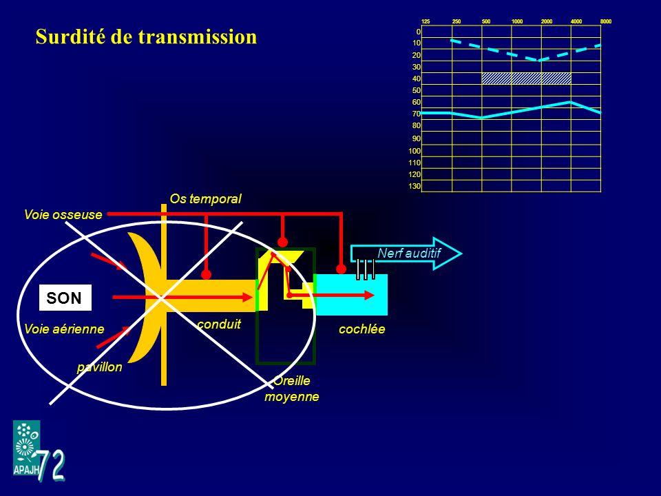Surdité de transmission