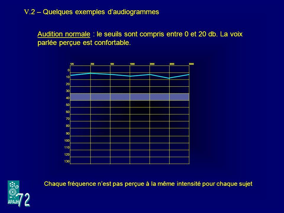 V.2 – Quelques exemples d'audiogrammes