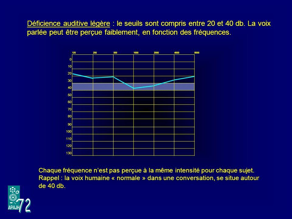 Déficience auditive légère : le seuils sont compris entre 20 et 40 db