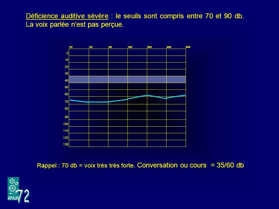 Déficience auditive sévère : le seuils sont compris entre 70 et 90 db