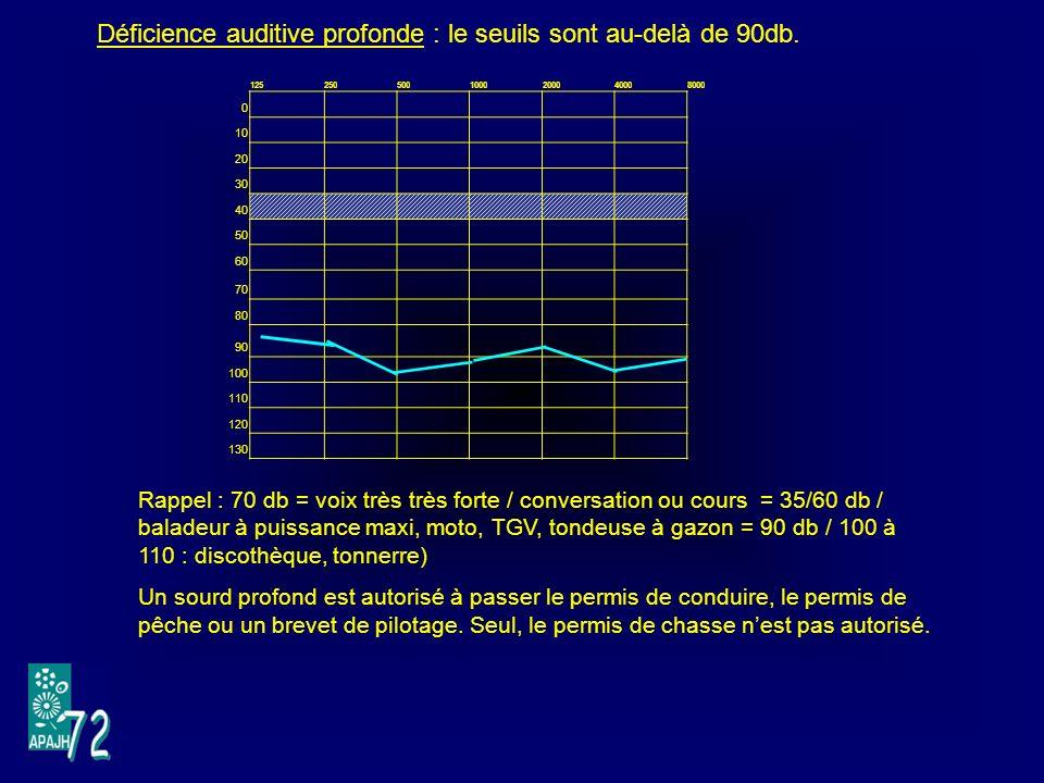 Déficience auditive profonde : le seuils sont au-delà de 90db.