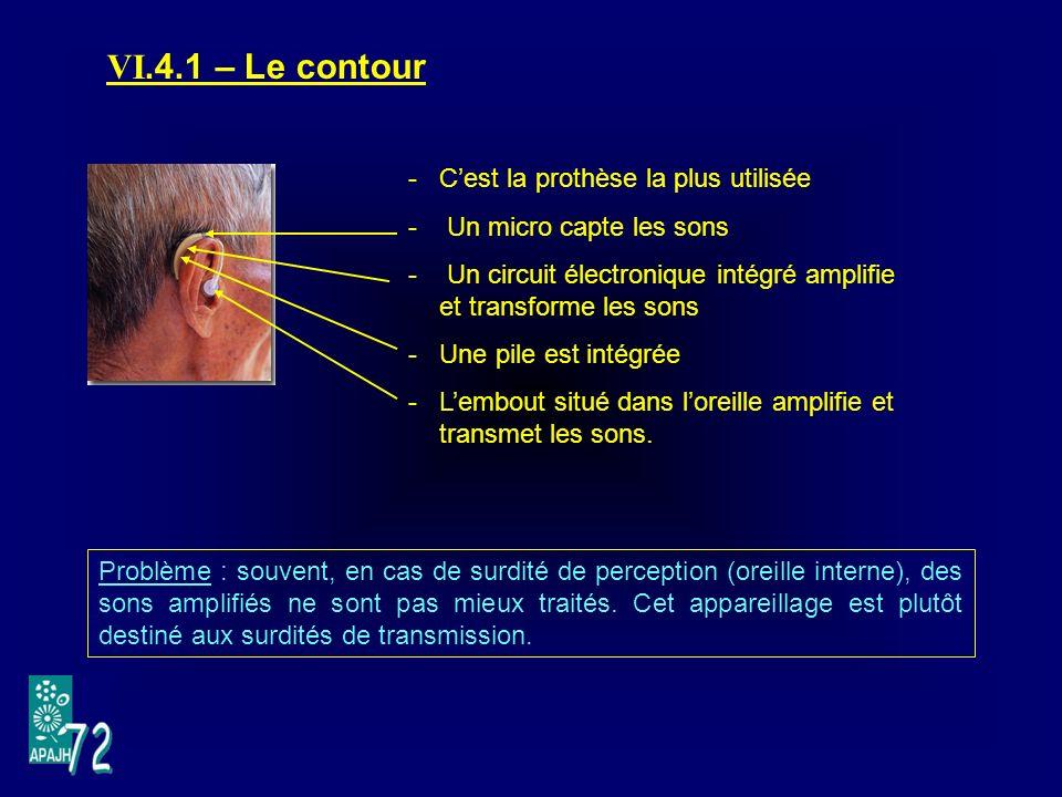 VI.4.1 – Le contour C'est la prothèse la plus utilisée