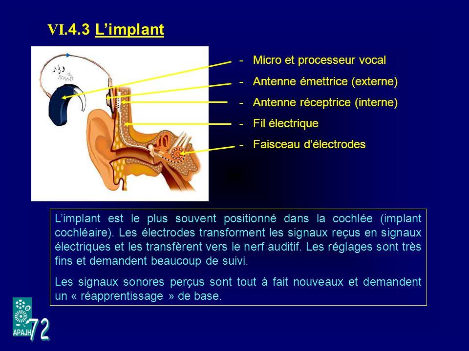VI.4.3 L'implant Micro et processeur vocal Antenne émettrice (externe)
