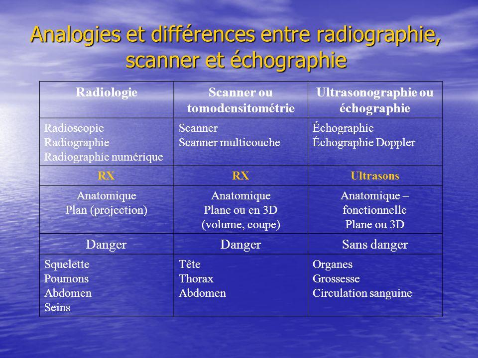 Analogies et différences entre radiographie, scanner et échographie