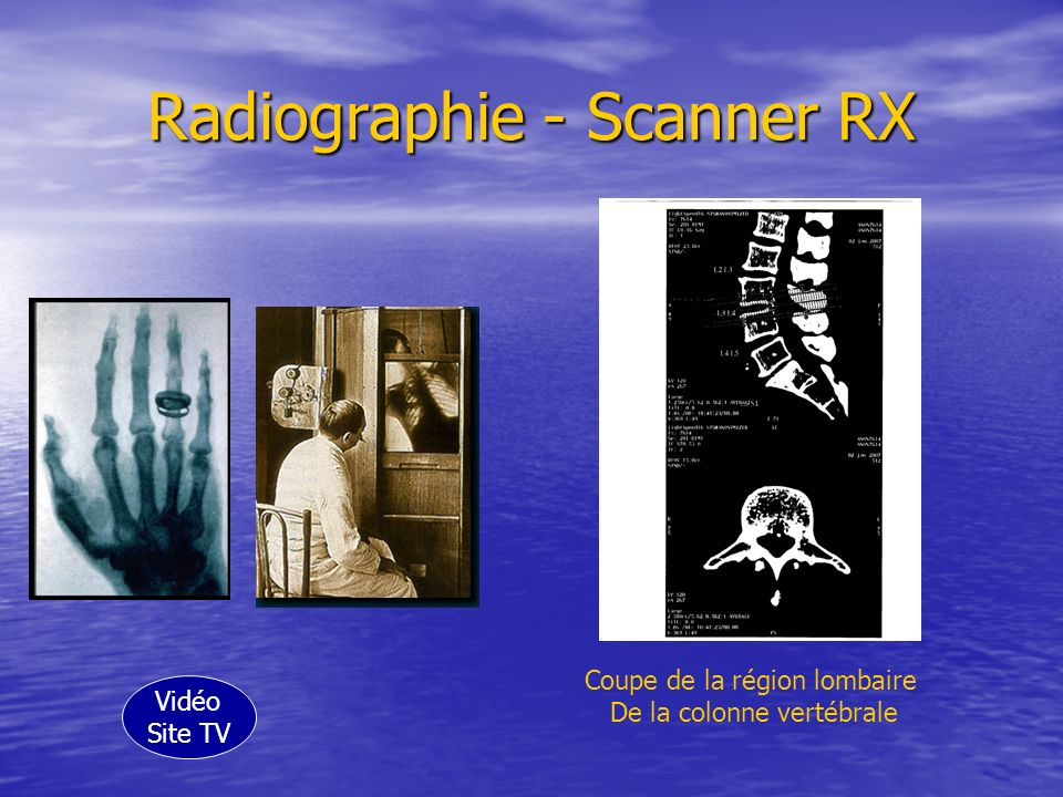 Radiographie - Scanner RX