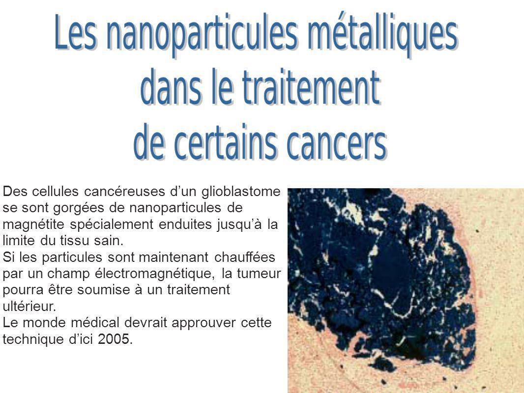 Des cellules cancéreuses d'un glioblastome se sont gorgées de nanoparticules de magnétite spécialement enduites jusqu'à la limite du tissu sain.