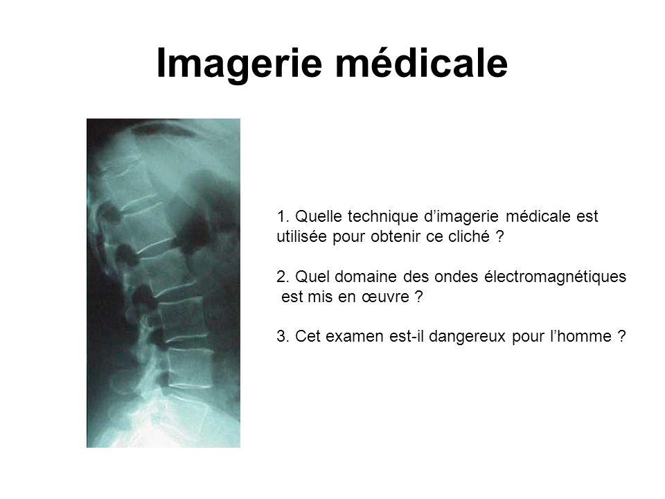 Imagerie médicale 1. Quelle technique d'imagerie médicale est