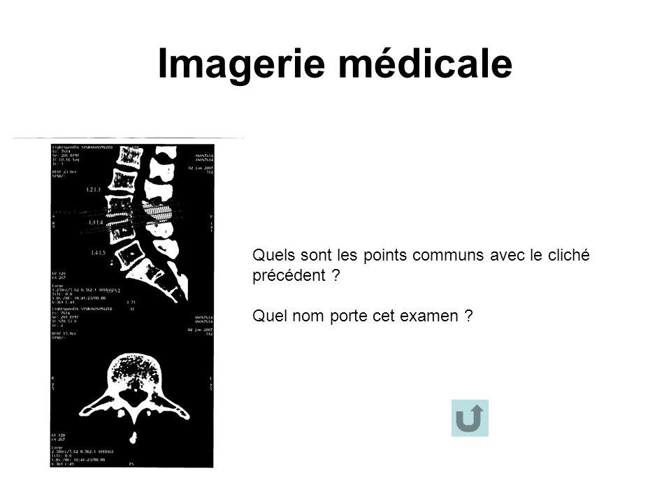 Imagerie médicale Quels sont les points communs avec le cliché