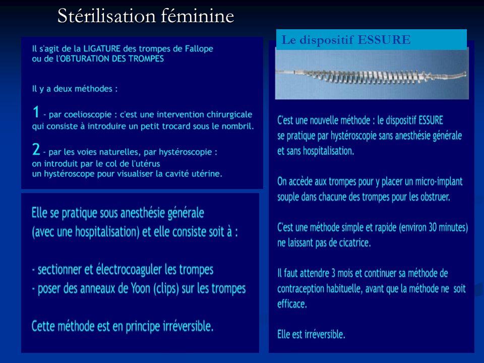 Stérilisation féminine