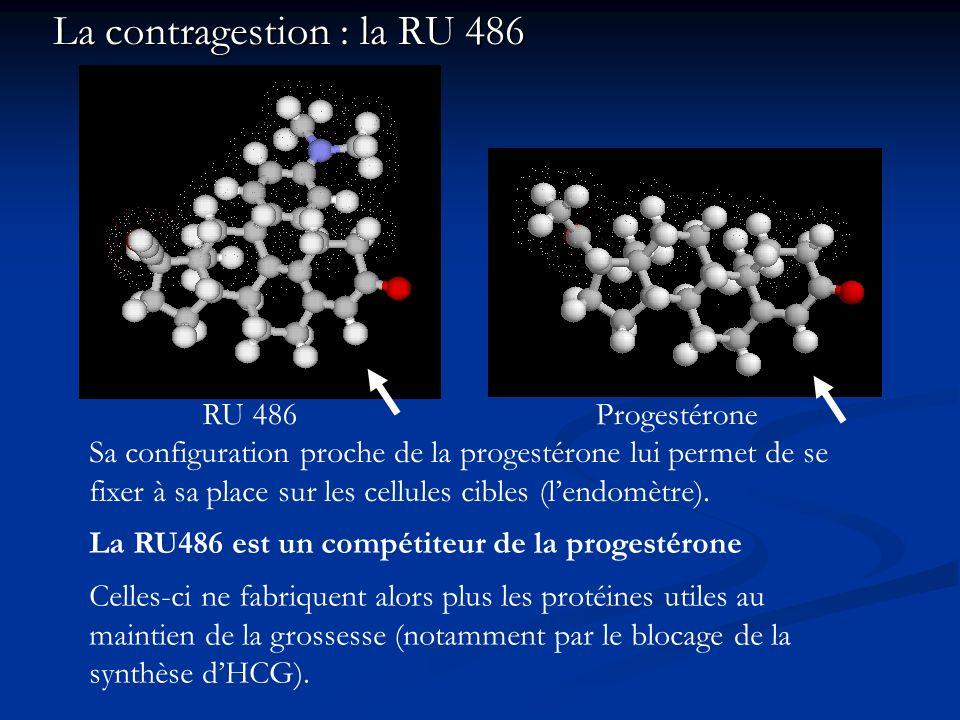La contragestion : la RU 486