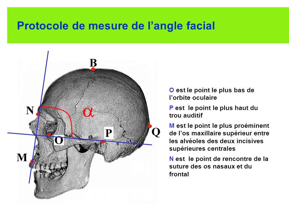 Protocole de mesure de l'angle facial