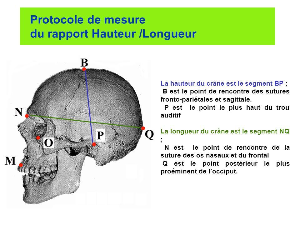 Protocole de mesure du rapport Hauteur /Longueur