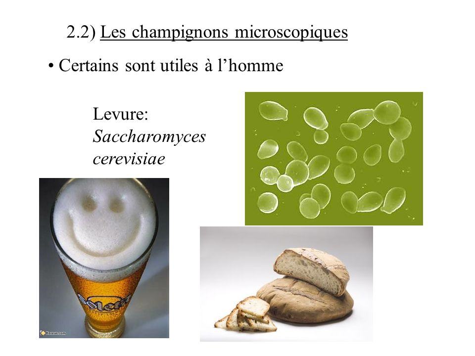 2.2) Les champignons microscopiques