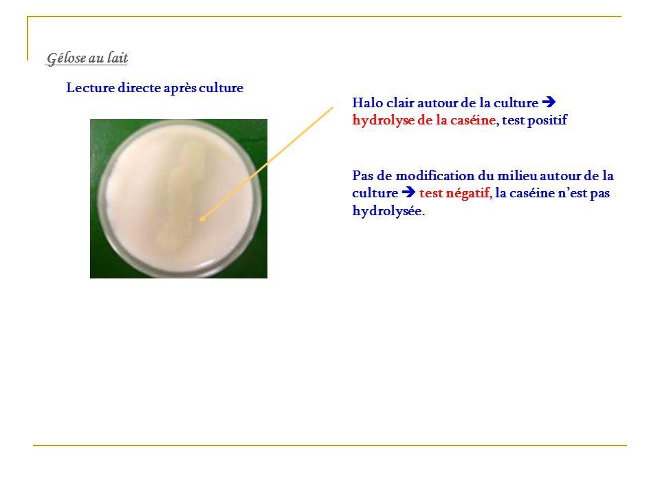 Gélose au lait Lecture directe après culture