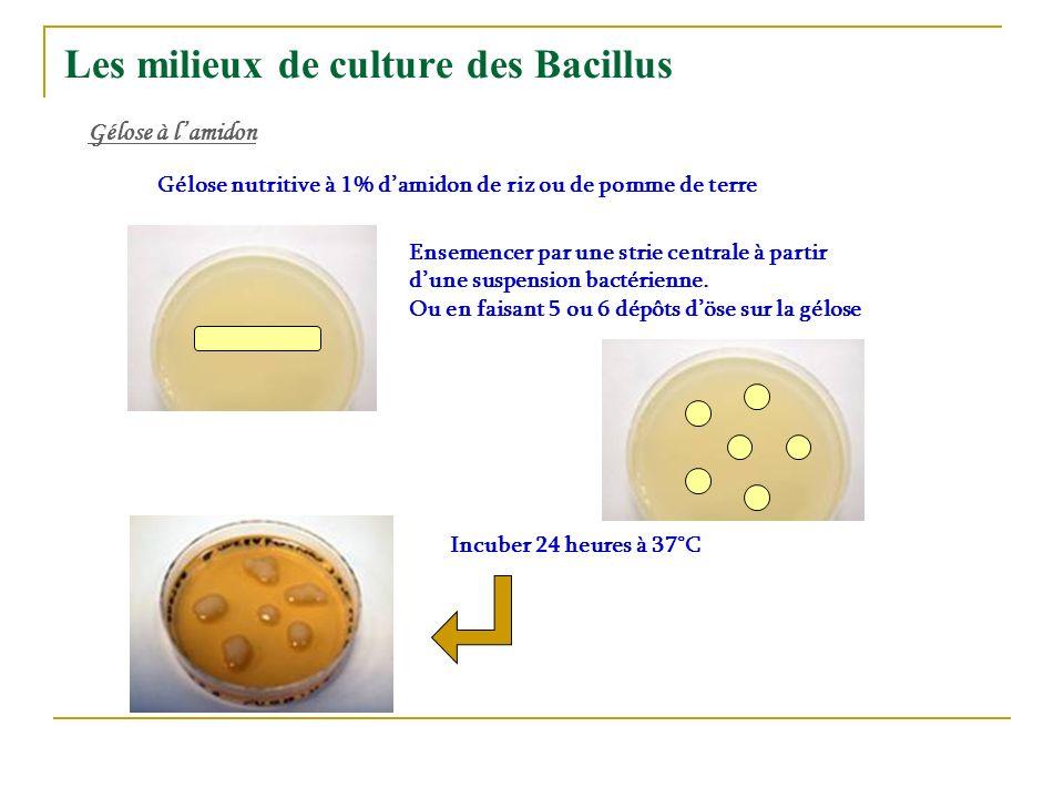 Les milieux de culture des Bacillus