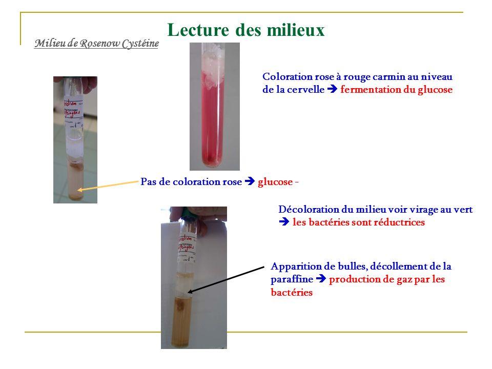Lecture des milieux Milieu de Rosenow Cystéine