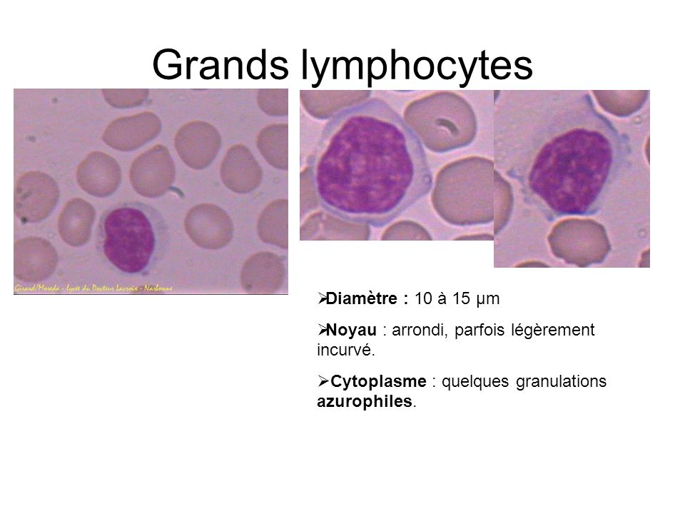 Grands lymphocytes Diamètre : 10 à 15 µm