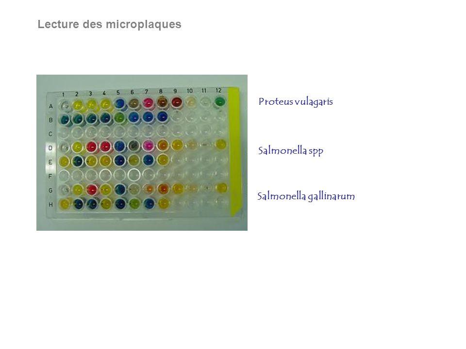 Lecture des microplaques