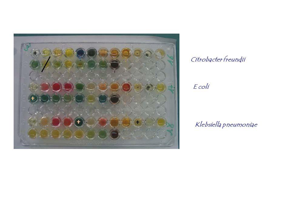 + Citrobacter freundii E coli + + + Klebsiella pneumoniae
