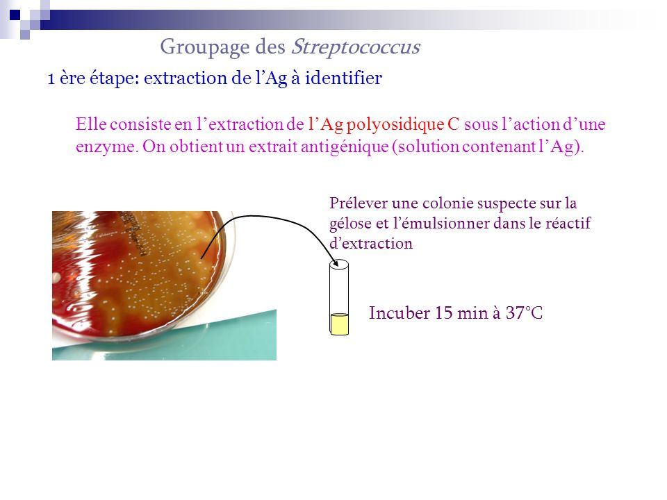 Groupage des Streptococcus