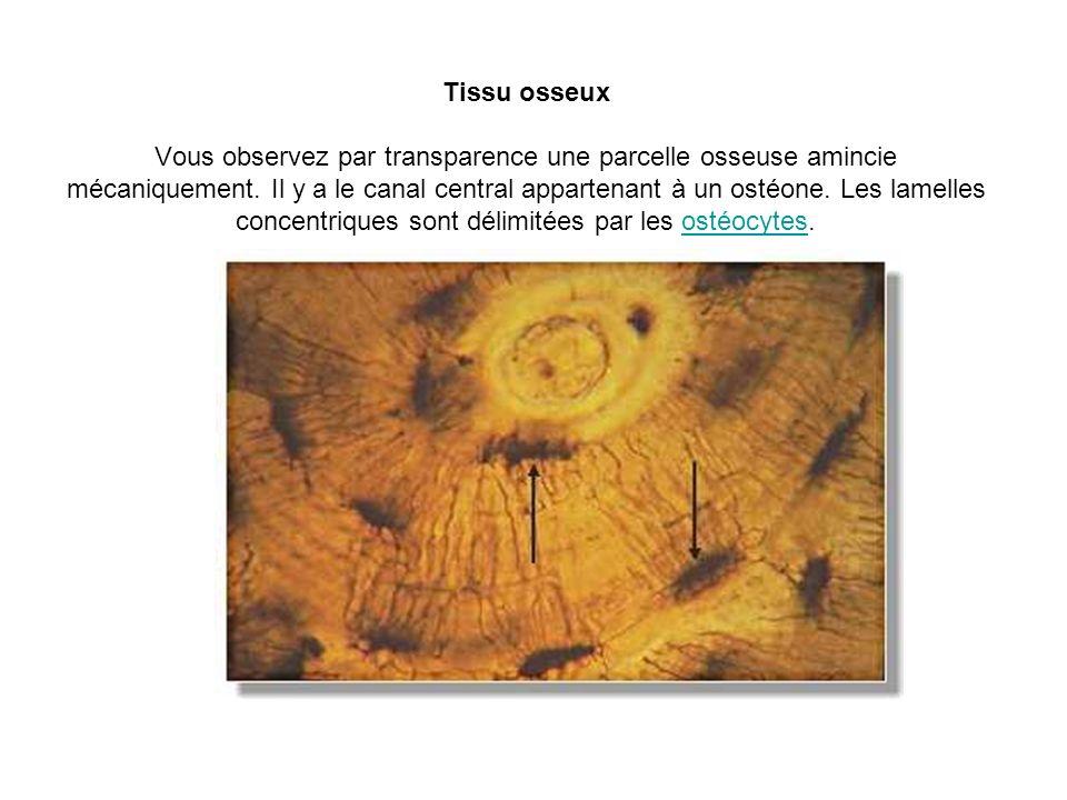 Tissu osseux Vous observez par transparence une parcelle osseuse amincie mécaniquement.