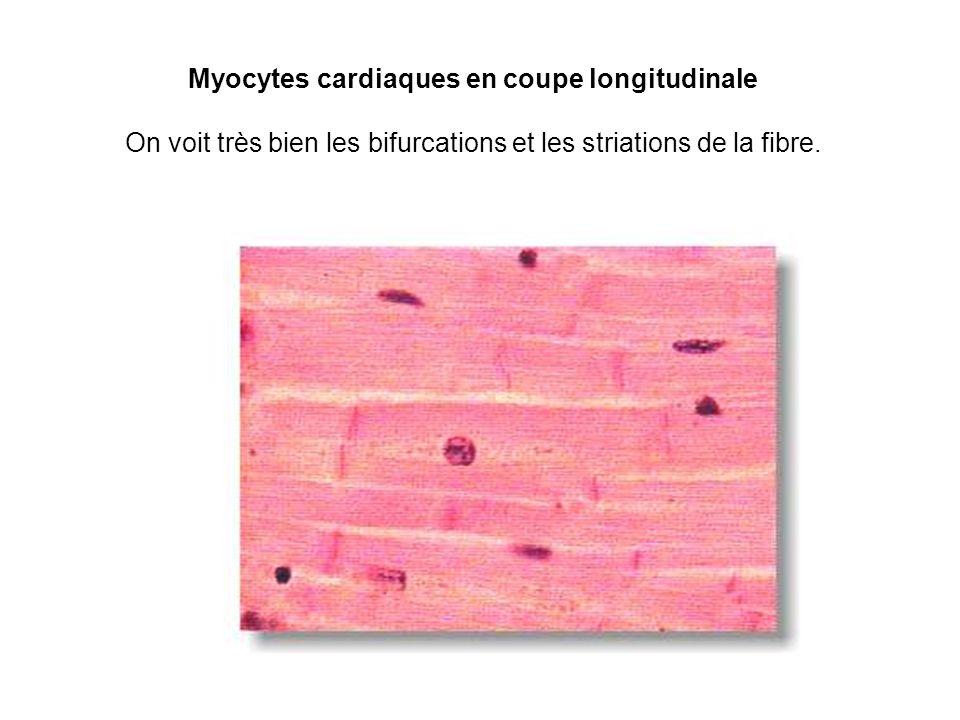 Myocytes cardiaques en coupe longitudinale On voit très bien les bifurcations et les striations de la fibre.