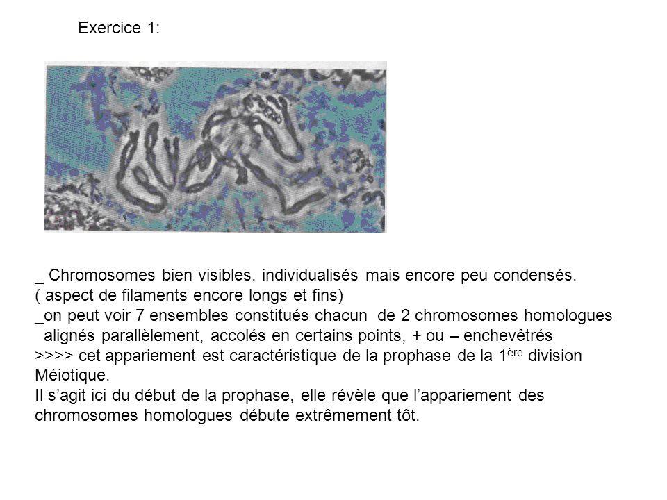 Exercice 1:_ Chromosomes bien visibles, individualisés mais encore peu condensés. ( aspect de filaments encore longs et fins)