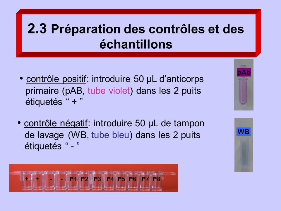2.3 Préparation des contrôles et des échantillons