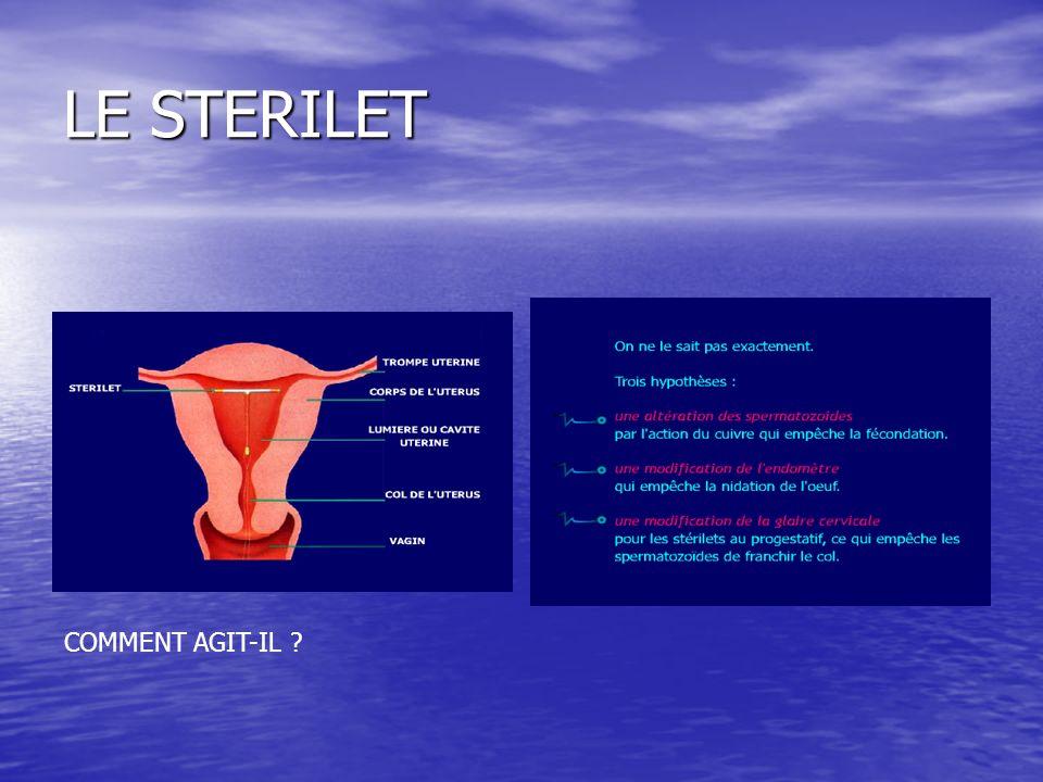 LE STERILET COMMENT AGIT-IL