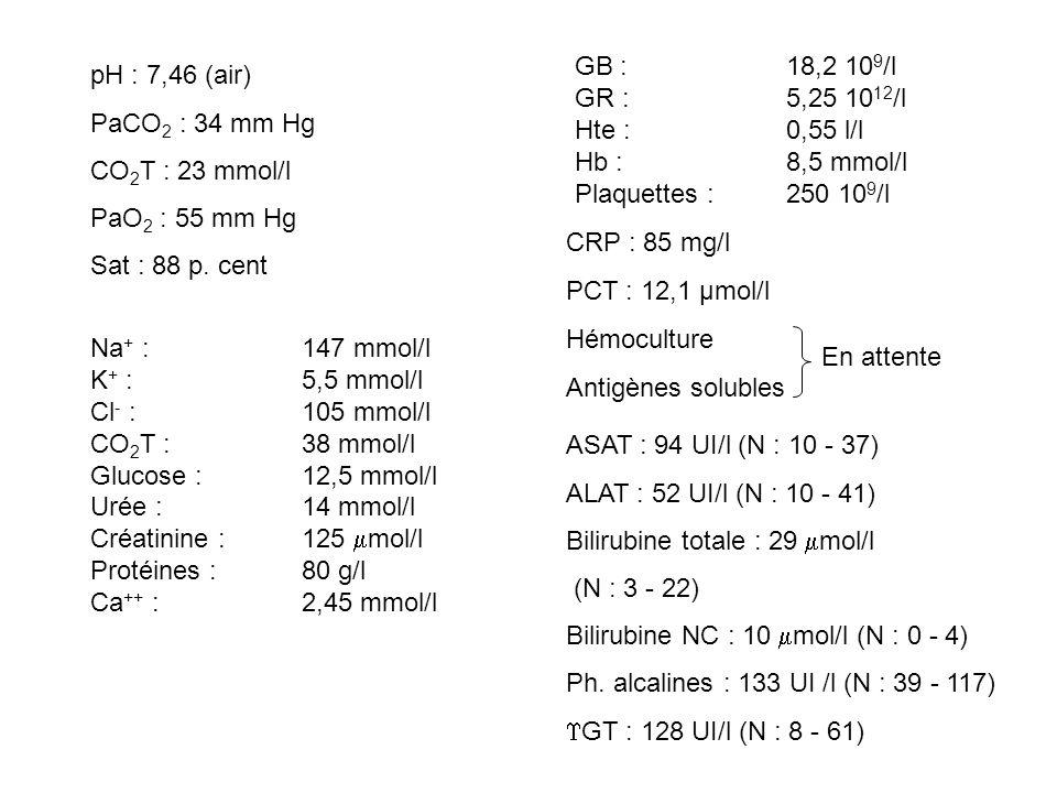 GB : 18,2 109/l GR : 5,25 1012/l. Hte : 0,55 l/l. Hb : 8,5 mmol/l. Plaquettes : 250 109/l.