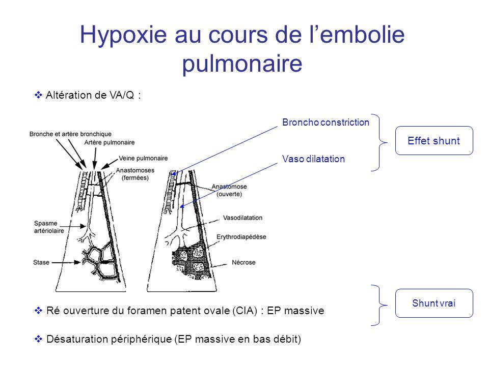 Hypoxie au cours de l'embolie pulmonaire