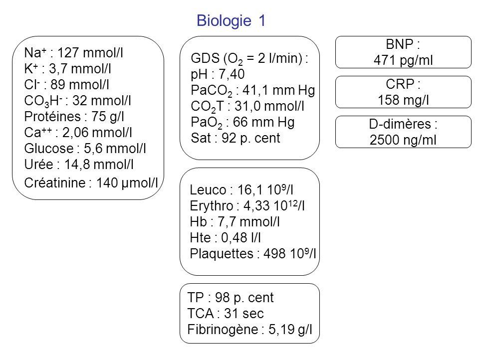 Biologie 1 BNP : Na+ : 127 mmol/l GDS (O2 = 2 l/min) : 471 pg/ml