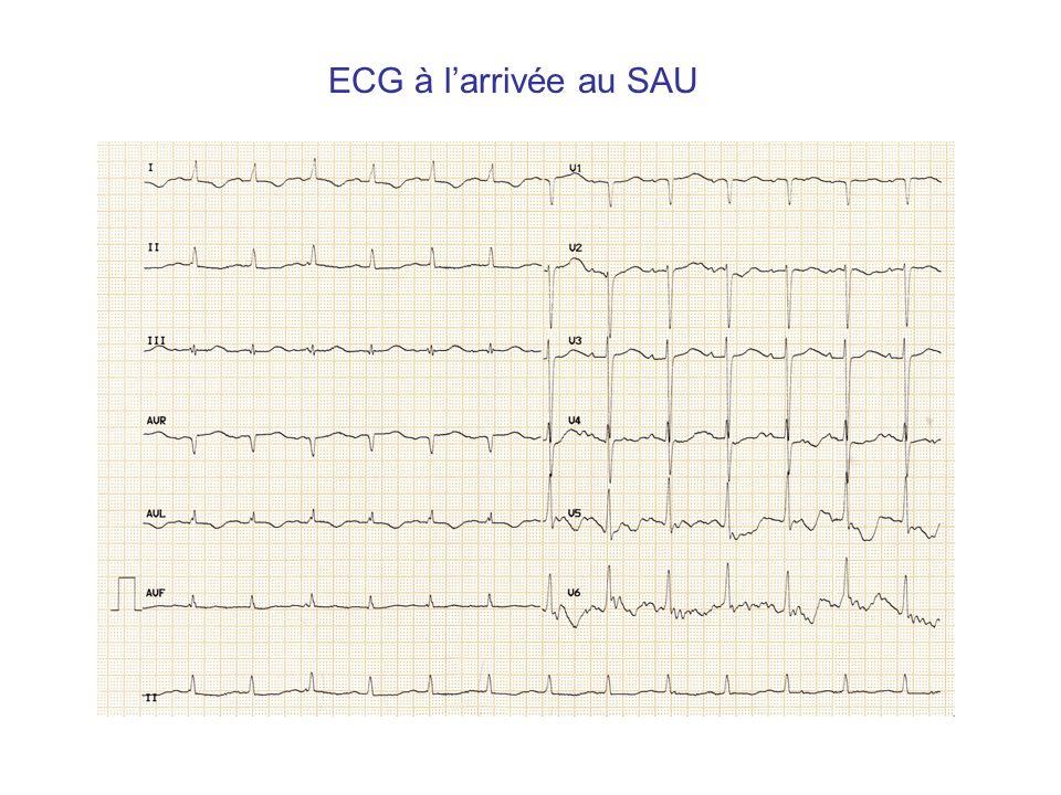 ECG à l'arrivée au SAU