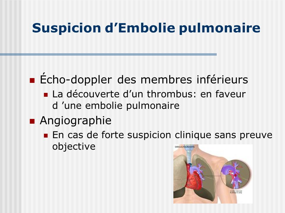 Suspicion d'Embolie pulmonaire
