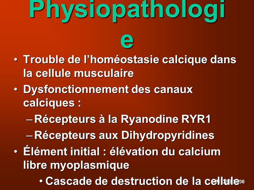 Physiopathologie Trouble de l'homéostasie calcique dans la cellule musculaire. Dysfonctionnement des canaux calciques :