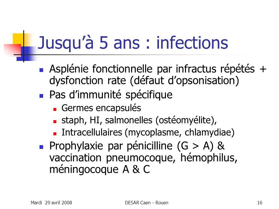Jusqu'à 5 ans : infections