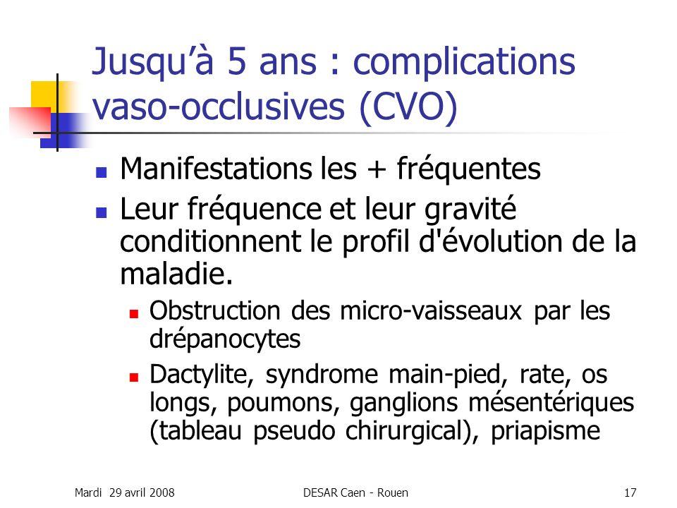 Jusqu'à 5 ans : complications vaso-occlusives (CVO)
