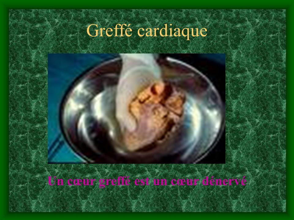 Greffé cardiaque Un cœur greffé est un cœur dénervé 31 31