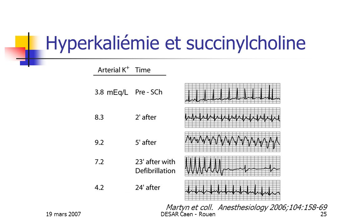 Hyperkaliémie et succinylcholine