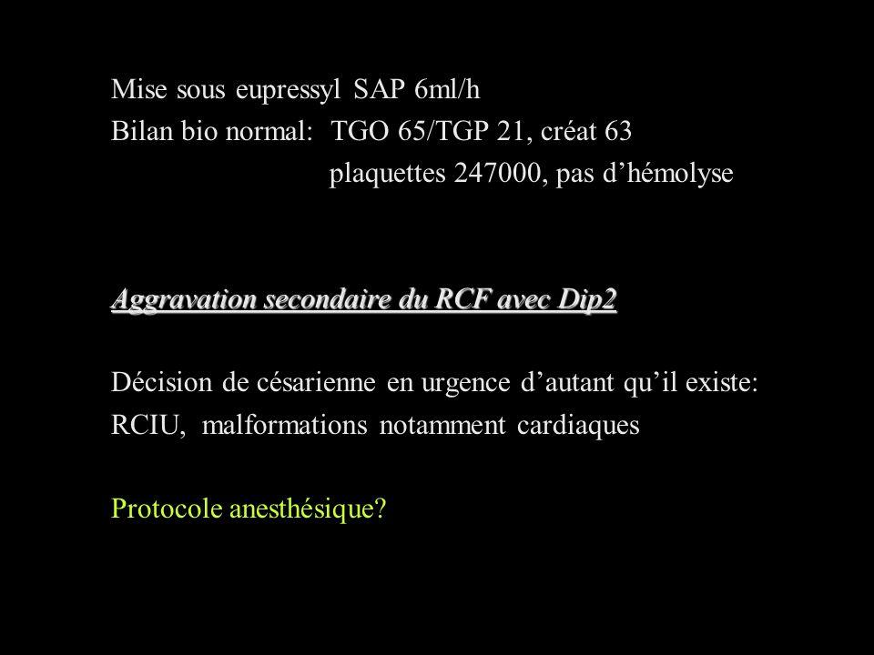 Mise sous eupressyl SAP 6ml/h