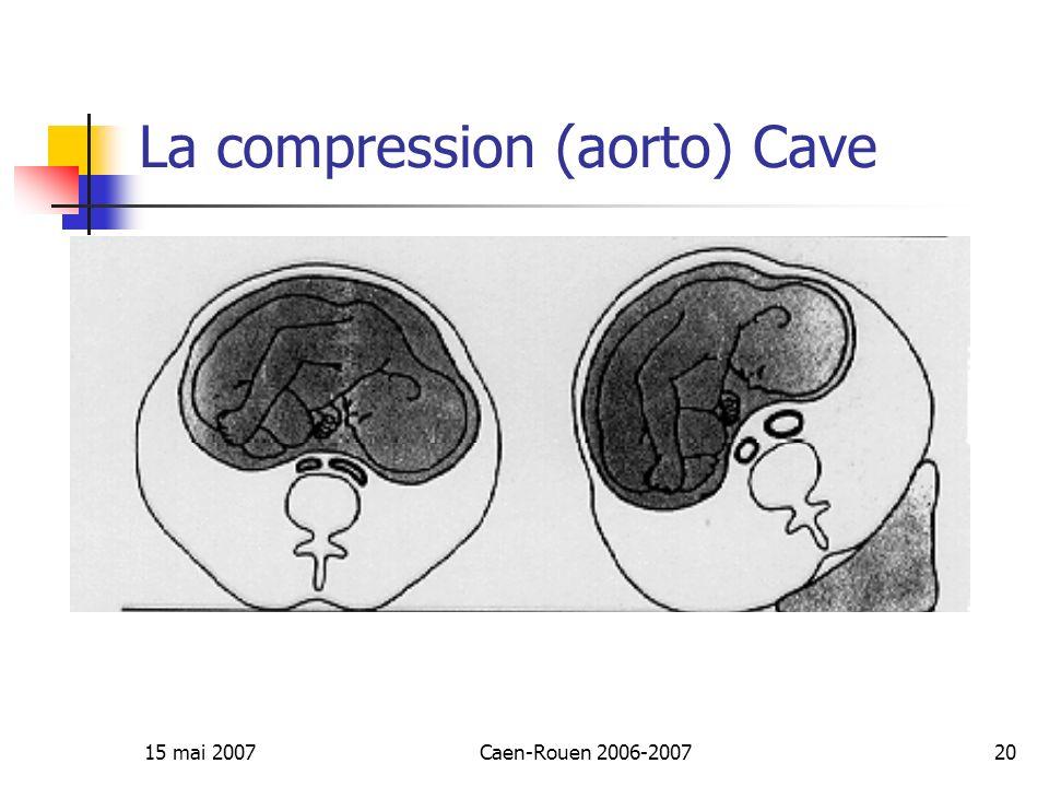 La compression (aorto) Cave