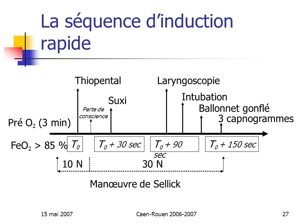 La séquence d'induction rapide