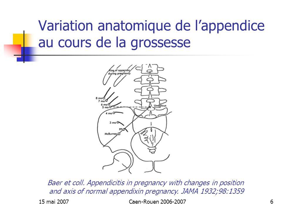 Variation anatomique de l'appendice au cours de la grossesse