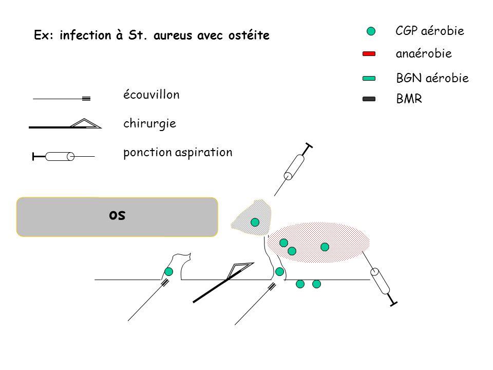 so CGP aérobie Ex: infection à St. aureus avec ostéite anaérobie