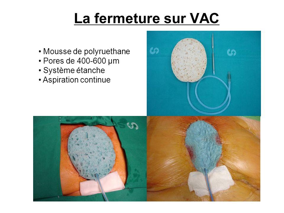 La fermeture sur VAC Mousse de polyruethane Pores de 400-600 µm