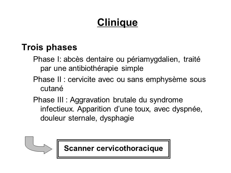 Clinique Trois phases. Phase I: abcès dentaire ou périamygdalien, traité par une antibiothérapie simple.
