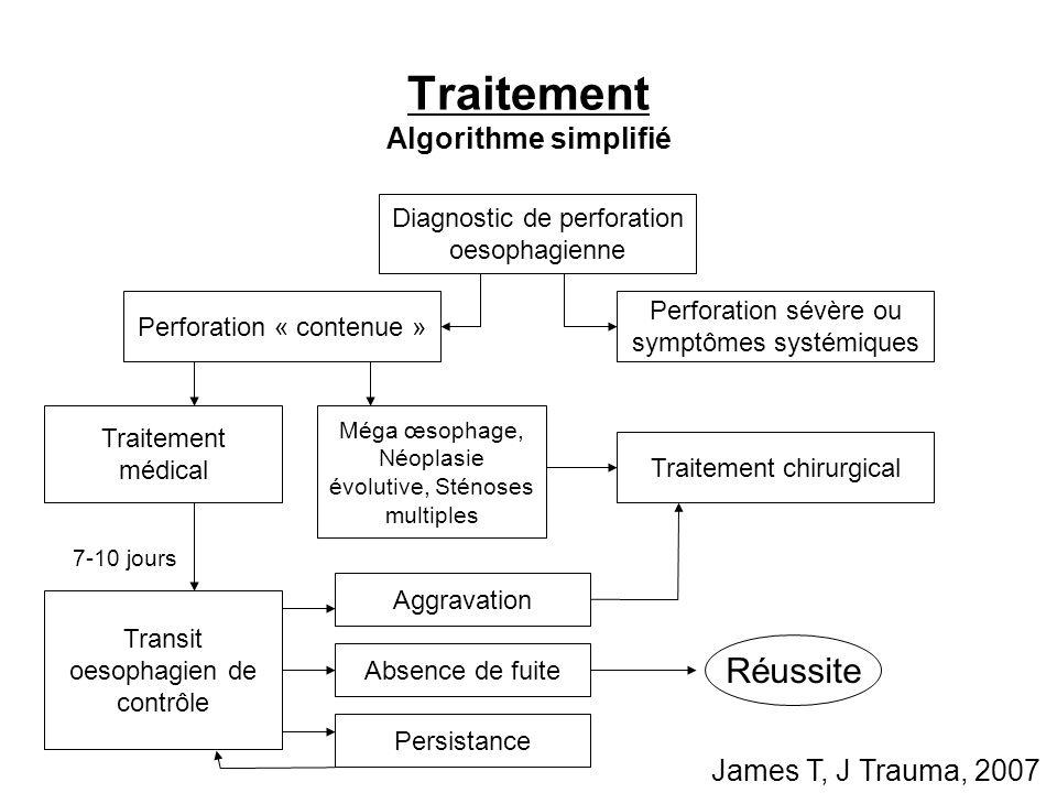 Traitement Algorithme simplifié