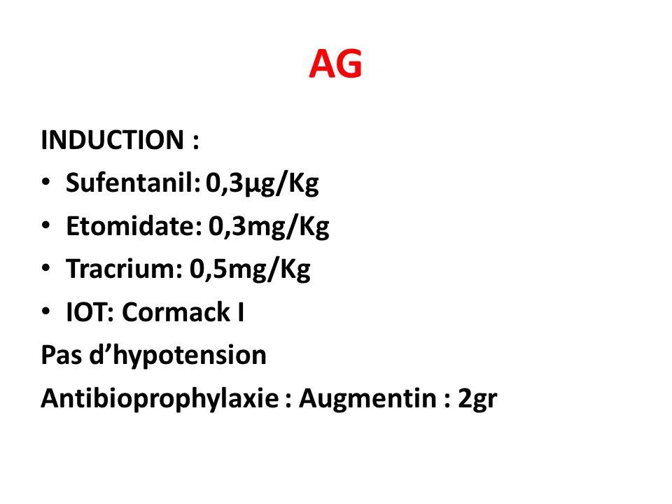 AG INDUCTION : Sufentanil: 0,3µg/Kg Etomidate: 0,3mg/Kg