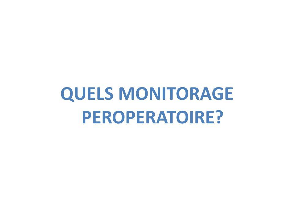 QUELS MONITORAGE PEROPERATOIRE
